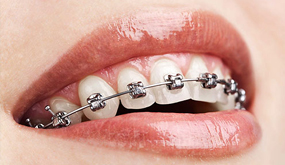 orthodontrix